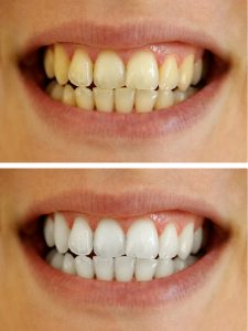 Your dentist for professional teeth whitening in Springfield.